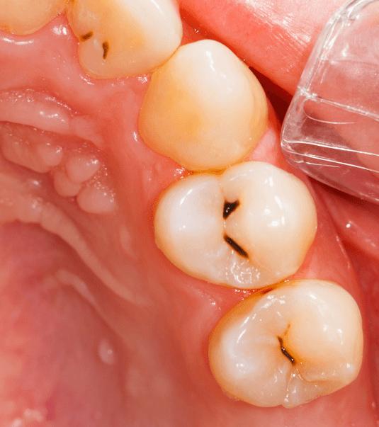 Before-Endodoncija