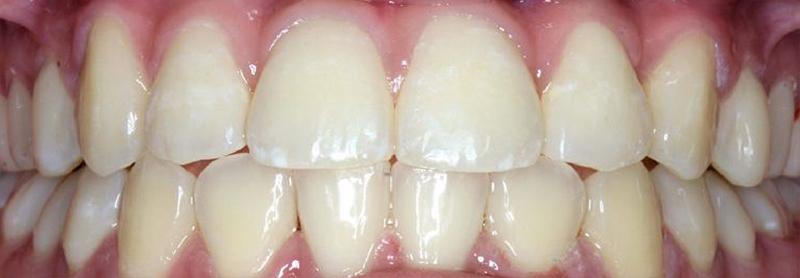 After-Ortodoncija