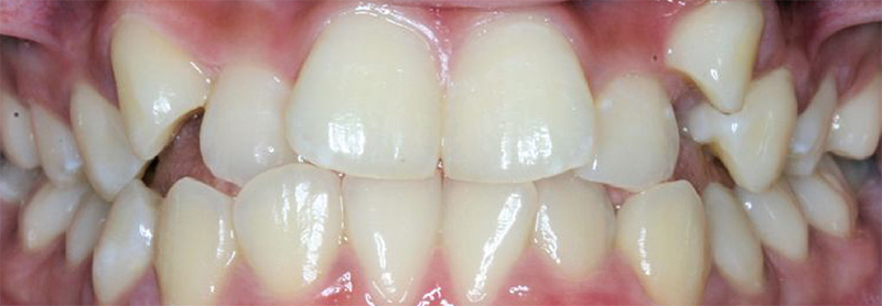 Before-Ortodoncija