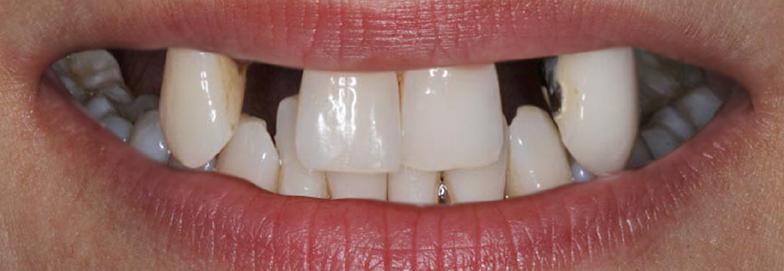 Before-stomatoloskaprotetika